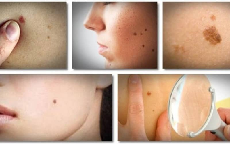 Skin tags Moles and warts in Beur