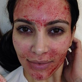 Vampire Facial in Old Jakkanpur